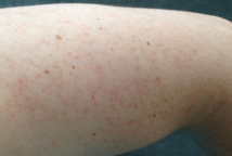Keratosis Pilaris - How to identify and treat this prickly problem.