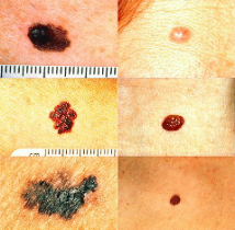 What is an atypical mole?  - Sporadic dysplastic moles and familial atypical mole syndrome explained.