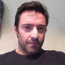 Hugh Jackman's Skin Cancer Scare and Facts You Need to Know about Basal Cell Carcinoma!