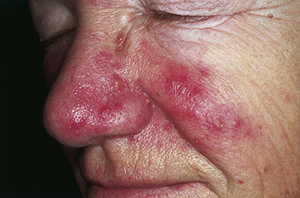 Man with Rosacea on Cheeks and Nose